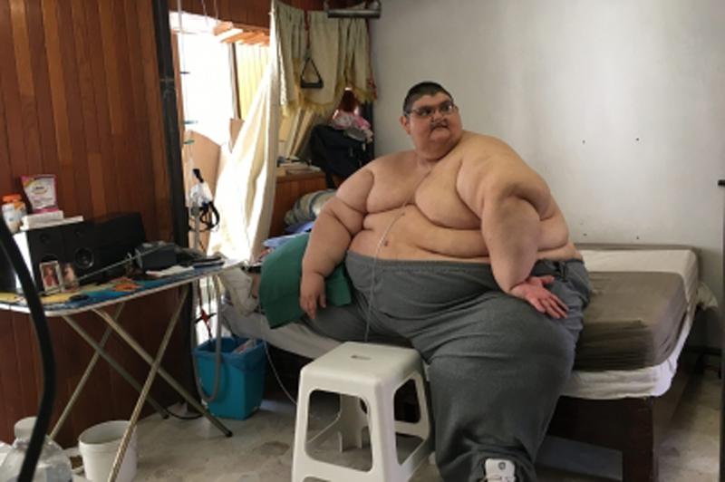 Como bajar de peso despues de un bypass gastrico
